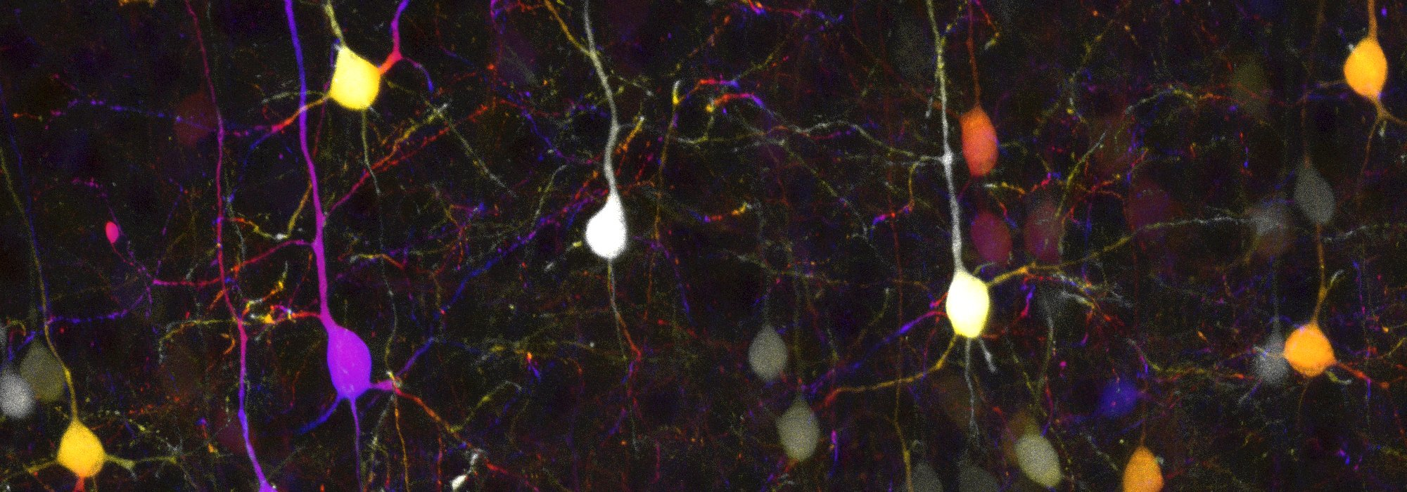 Depth-coded orojection of a Z-stack of cortical neurons